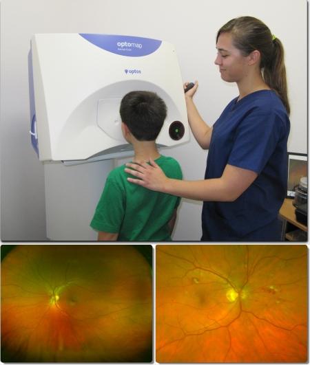 Used Optos Daytona Digital Retinal Scanner For Sale  Digital Retinal Scan