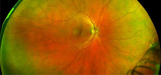 high definition retinal imaging